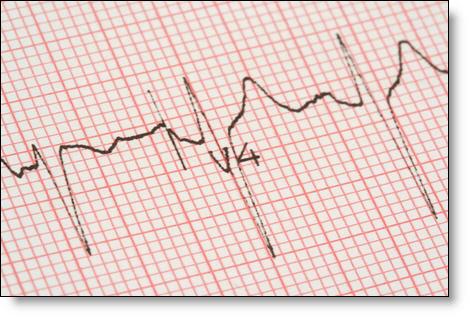 Cardiacwavesmall
